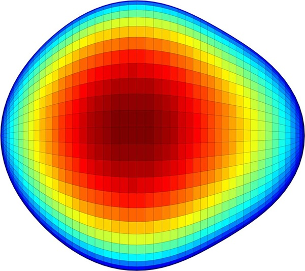 Pear shaped nucleus of an exotic atom