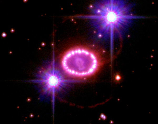 "Supernova 1987A and its ""String of Pearls"""